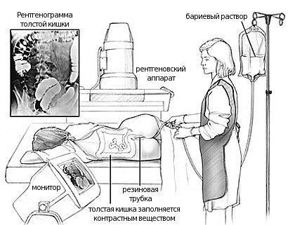 Хвороба Уіппла: симптоми і лікування