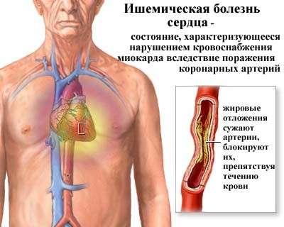 Ішемічна хвороба серця: симптоми і лікування