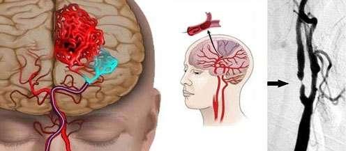 Ішемія: симптоми і лікування