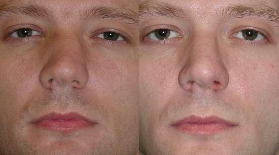 Викривлення носової перегородки: симптоми і лікування
