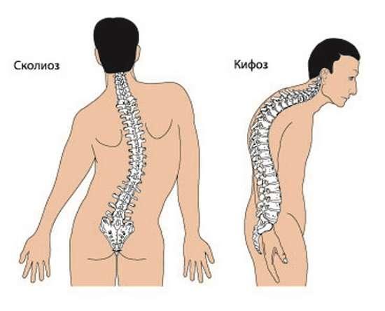 Кіфоз: симптоми і лікування