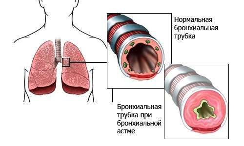 Бронхіальна астма у дітей: симптоми і лікування