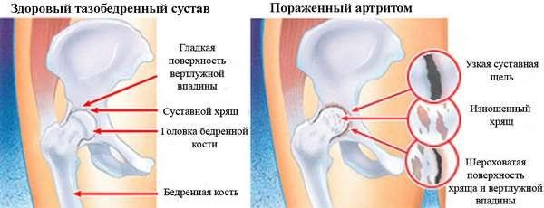 Артрит кульшового суглоба: симптоми і лікування