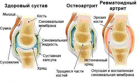 Артрит плечового суглоба: симптоми і лікування