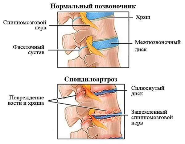 Спондилоартроз: симптоми і лікування