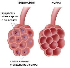 Безсимптомна (прихована) пневмонія: симптоми і лікування