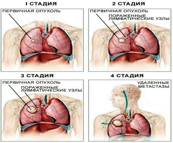 Рак бронхів: симптоми і лікування