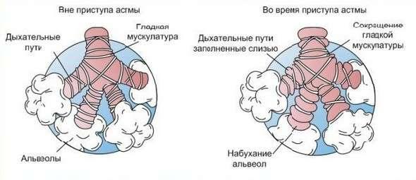 Астматичний кашель: симптоми і лікування