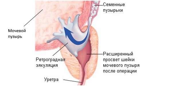 Ретроградна еякуляція: симптоми і лікування