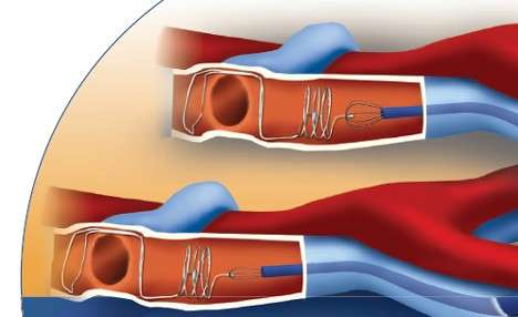 Інфаркт легені: симптоми і лікування