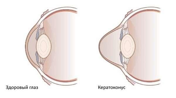 Кератоконус: симптоми і лікування