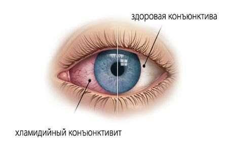 Хламідійний конюнктивіт (офтальмохламідіоз): симптоми і лікування