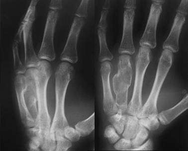 Хондрома: симптоми і лікування