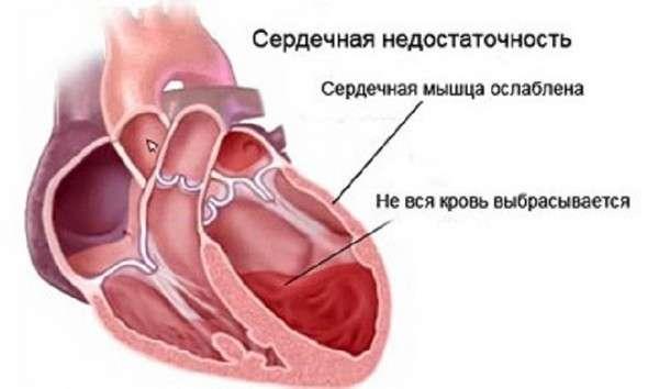 Хронічна серцева недостатність: симптоми і лікування