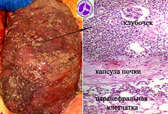 Інтерстиціальний нефрит: симптоми і лікування