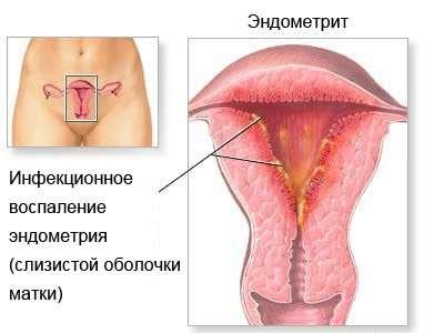 Метроэндометрит: симптоми і лікування