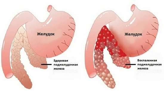 Хронічний панкреатит: симптоми і лікування