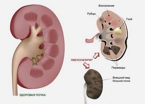 Хронічний пієлонефрит: симптоми і лікування