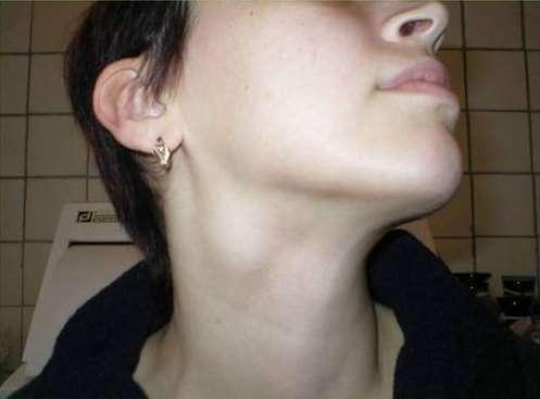 Лімфаденіт: симптоми і лікування