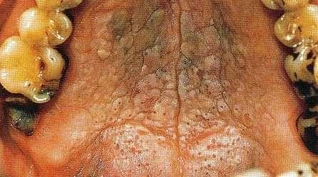 Хронічний стоматит: симптоми і лікування