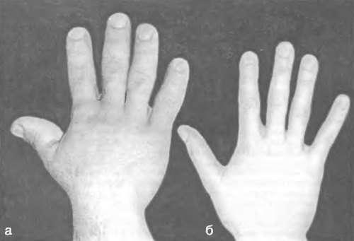 Гігантизм: симптоми і лікування