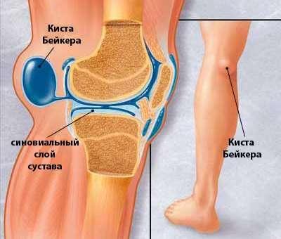 Кіста Бейкера: симптоми і лікування