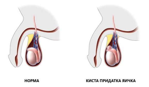 Сперматоцеле: симптоми і лікування