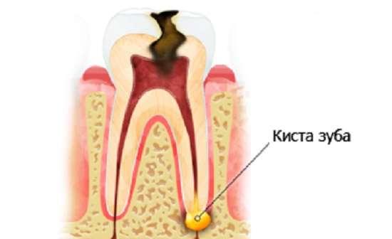 Кіста зуба: симптоми і лікування