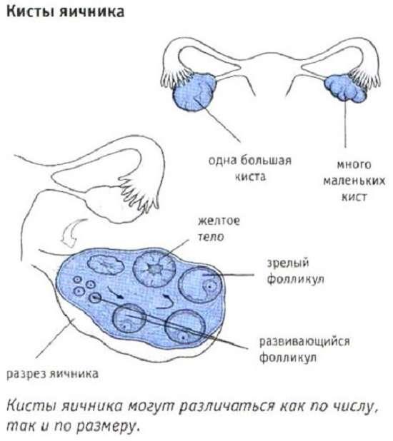 Кіста яєчника: симптоми і лікування