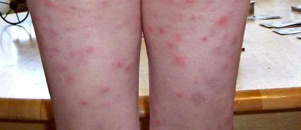 Рикетсіоз: симптоми і лікування