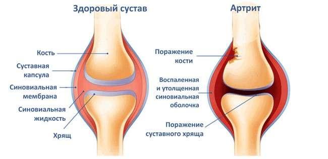 Артрит колінного суглоба: симптоми і лікування