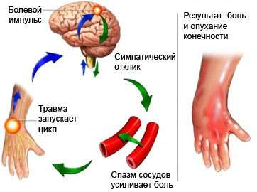 Больовий синдром: симптоми і лікування