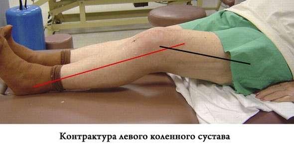Контрактура колінного суглоба: симптоми і лікування