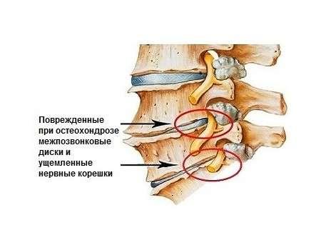 Дорсалгія: симптоми і лікування