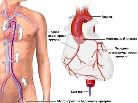 Коарктація аорти: симптоми і лікування