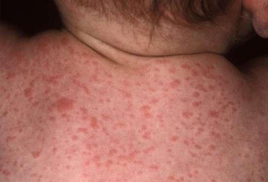 Краснуха: симптоми і лікування