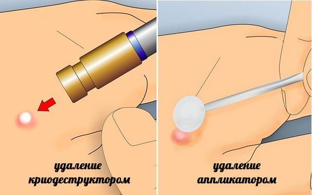 Полителия: симптоми і лікування