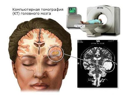 Деменції з тільцями Леві: симптоми і лікування