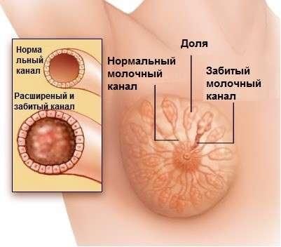 Лактостаз: симптоми і лікування