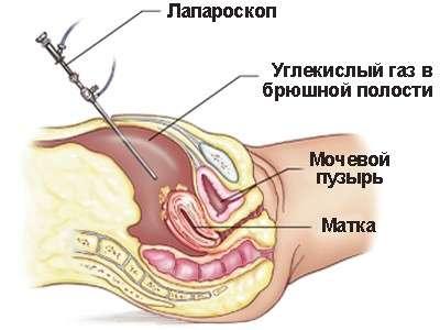 Рак ендометрію: симптоми і лікування