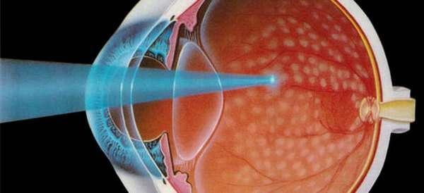Дистрофія сітківки ока: симптоми і лікування