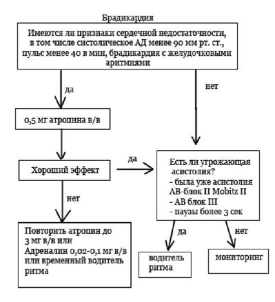 Брадикардія: симптоми і лікування