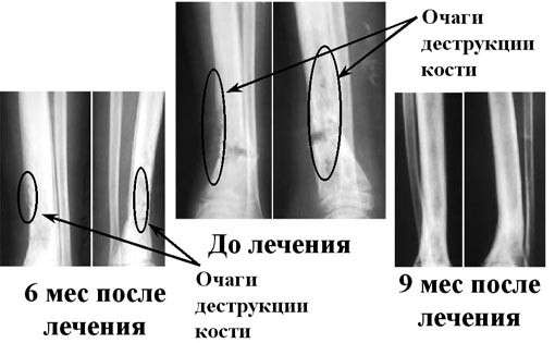 Гематогенний остеомієліт: симптоми і лікування