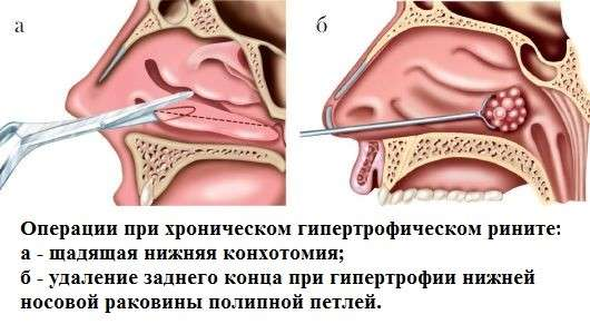 Гіпертрофічний риніт: симптоми і лікування