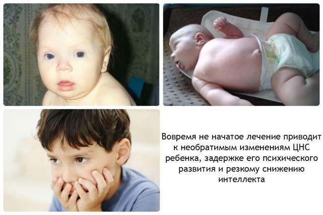 Гіпотиреоз у дітей: симптоми і лікування