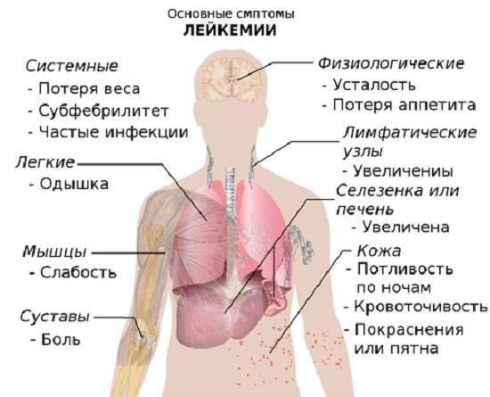 Лейкемія: симптоми і лікування