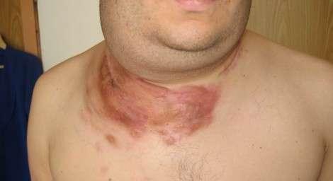 Лімфома Беркітта: симптоми і лікування