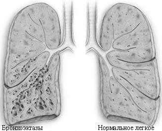 Бронхоектатична хвороба: симптоми і лікування