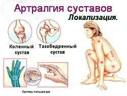 Артралгія: симптоми і лікування