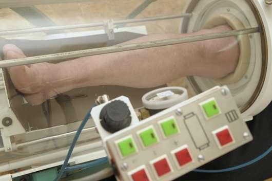 Облітеруючий ендартеріїт: симптоми і лікування